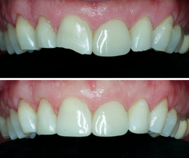 Cosmetic Fillings Before and After