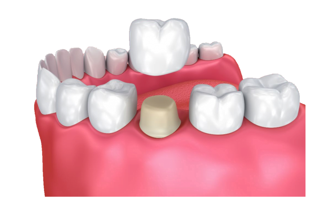3D Rendering Crowns at Dental Now Panorama