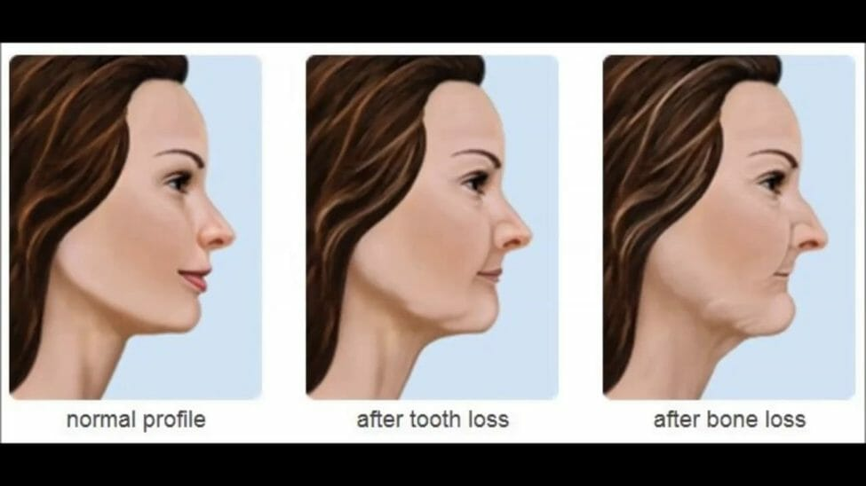 Periodontal Tooth Loss Dental Now Panorama